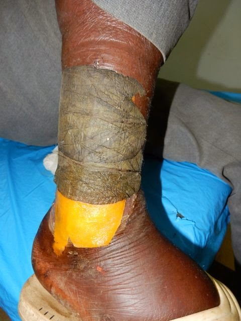 A leaf and papaya wound dressing.
